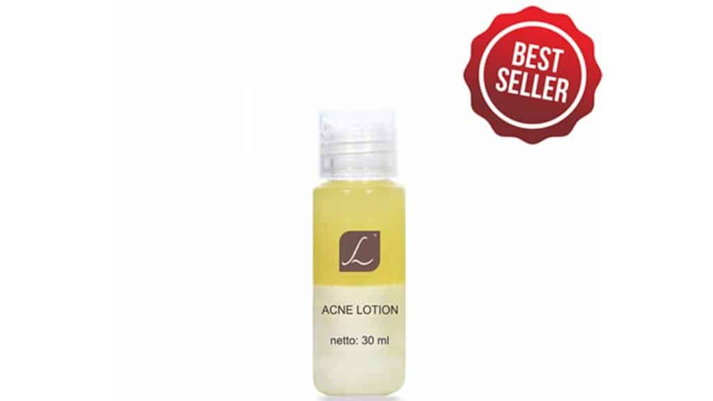 Acne Lotion by Larissa