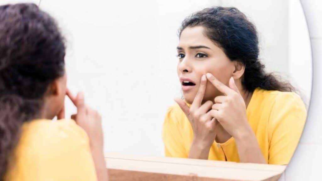 Rasa Sakit Berlebihan Akibat Pencet Jerawat di Muka
